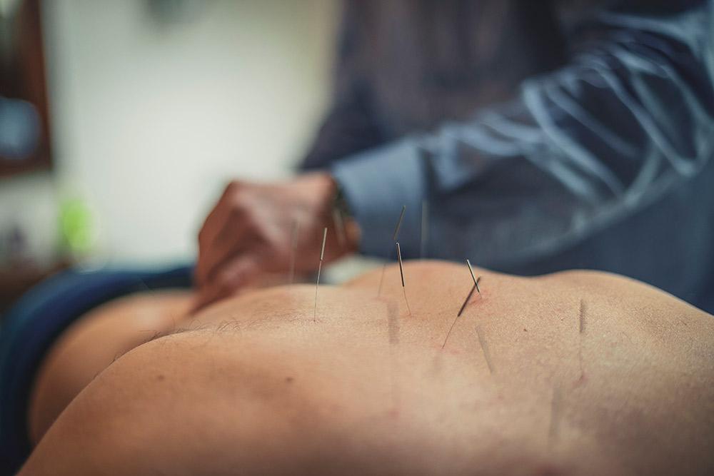 Acupunctuur Fjodor-Poort